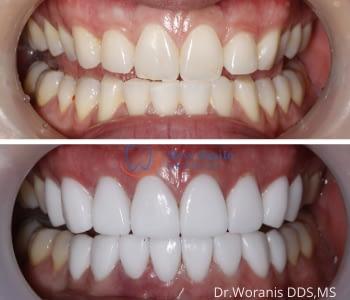Dental Veneers 2