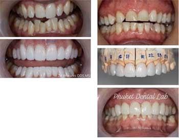 Dental Veneers 3