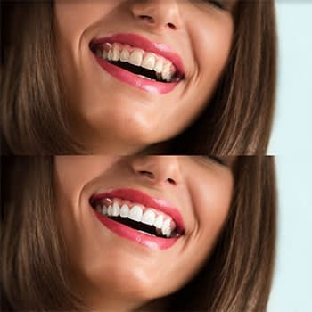 before and after teeth whitening in phuket
