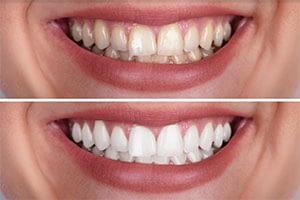 teeth whitening in Phuket