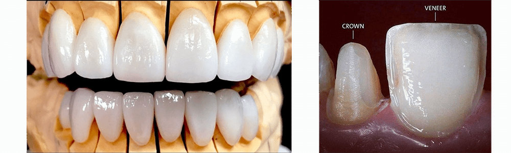 Dental Veneers in Phuket
