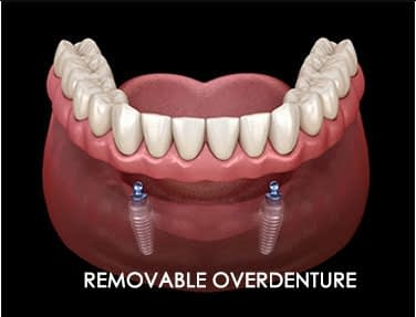 Removable Over denture