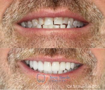 Dental Veneers 1
