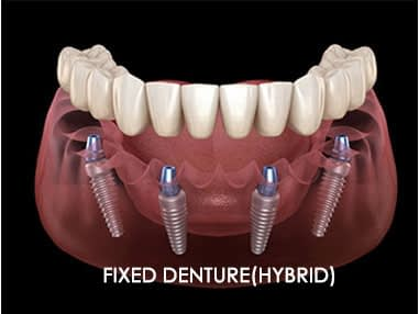 Dental Implant Hybrid